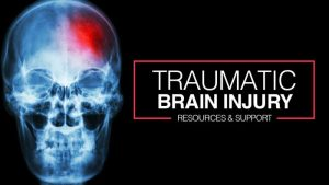 Traumatic Brain Injuries from Slip and Fall Accidents - Miami Slip and Fall Lawyer