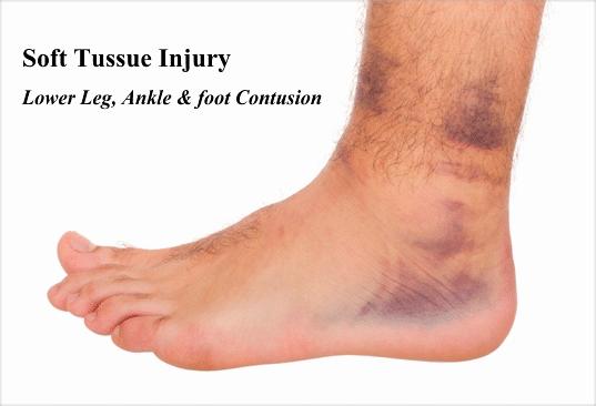 Personal Injury Lawyer In Miami - Understanding Soft Tissue Damage
