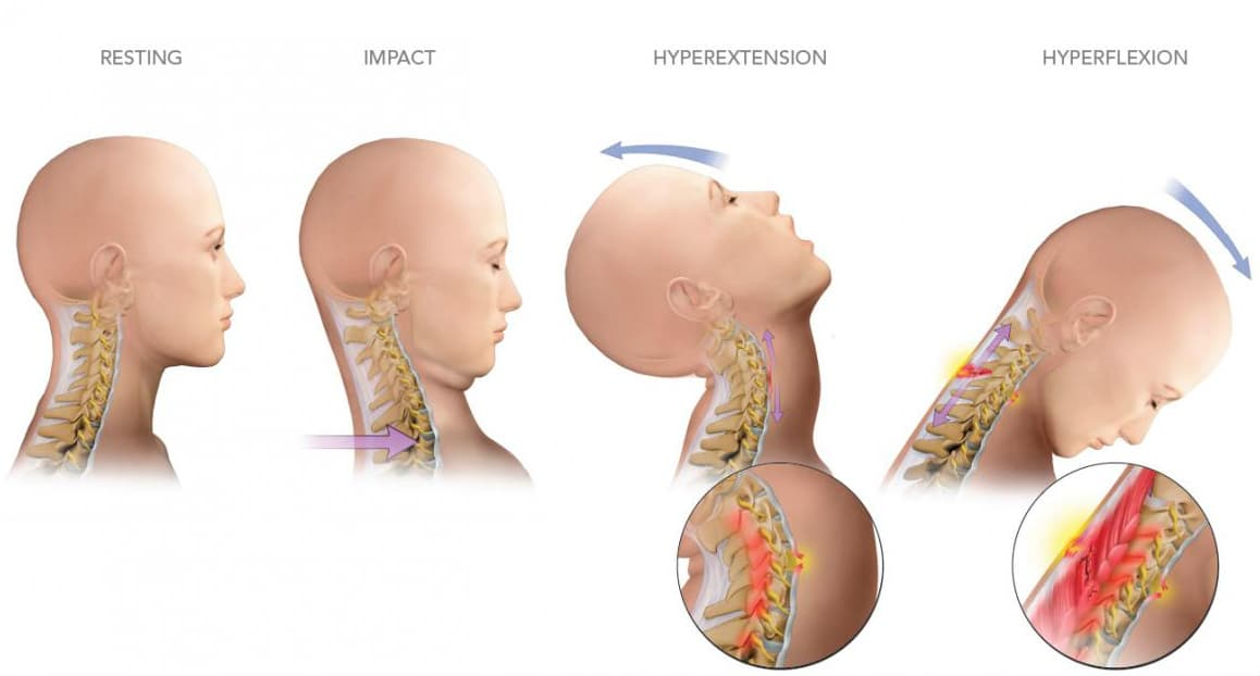 Understanding What Whiplash Is - Miami Personal Injury Lawyer News