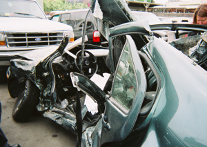 Car Accidents Can Cause Traumatic Brain Injuries - Miami Car Accident Lawyer Florida