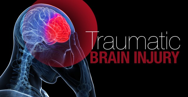 Car Accidents Can Cause Traumatic Brain Injuries - Miami Car Accident Lawyer
