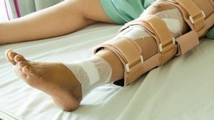 A Broken Bone Can be More Serious Than You Think - Miami Personal Injury Attorneys